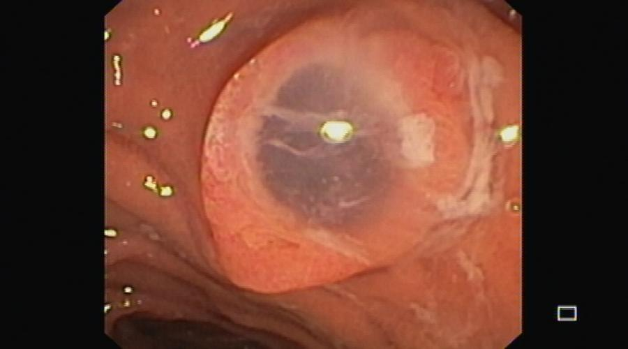 Spyglass pancreatoscopy for diagnosis, evaluation and staging of main duct intraductal papillary mucinous neoplasm